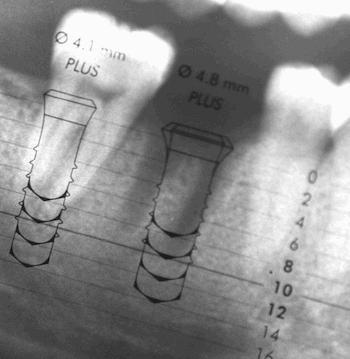 Download Implants Hongrie