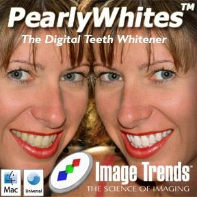 Download PearlyWhites Mac